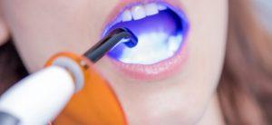 dental bonding uptown charlotte nc