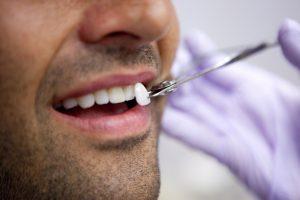 dental veneers uptown charlotte nc