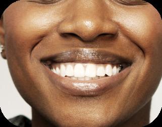 teeth whitening uptown charlotte nc