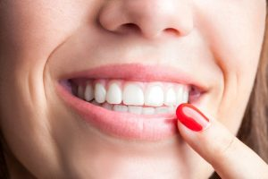 dental bonding in uptown charlotte