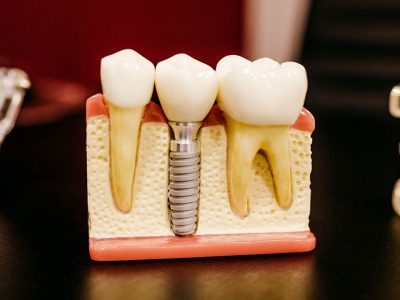 Artificial tooth for Dental implant procedure