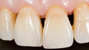Check for any plaque buildup in your teeth and visit your dentist for teeth cleaning