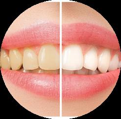teeth whitening in Uptown Charlotte near Plaza Midwood