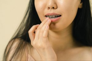 How to Prevent Dry, Cracked Lips